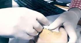 Australia Begins Microchipping Its Public