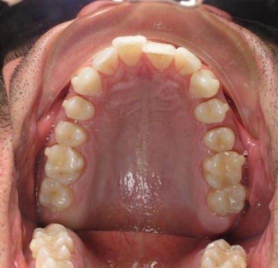 Progress pictures of Invisalign Braces 12 month report