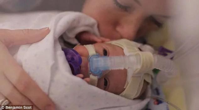 Nato prematuro a 25 settimane, viene ripreso dal padre per 1 anno  (FOTO&VIDEO)