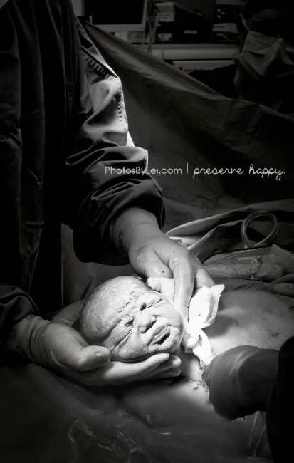 fotografie di parto parto cesareo