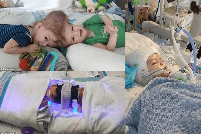 """""""Sono rinati"""": dice la mamma di 2 gemelli uniti per la testa dopo l'operazione"""