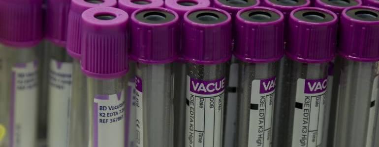 Investigan otro síndrome asociado al zika en el país