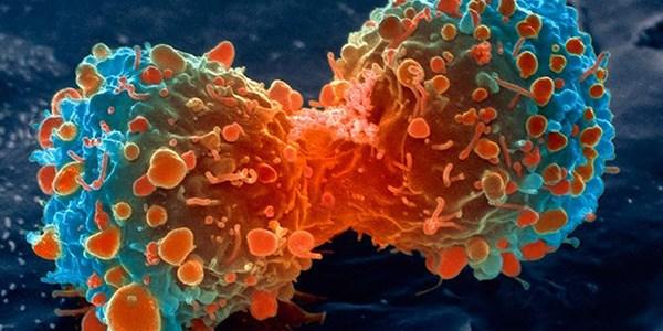 Científicos israelíes estarían desarrollando la cura para el cáncer