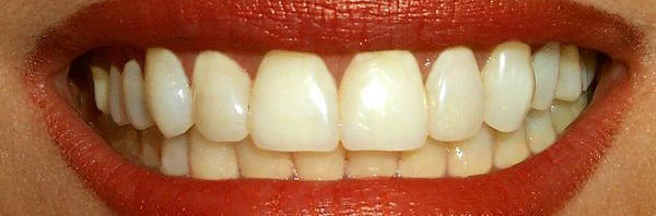 Ten teeth trivia facts!