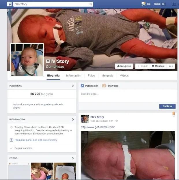 bebé-nacio-sin-nariz-facebook