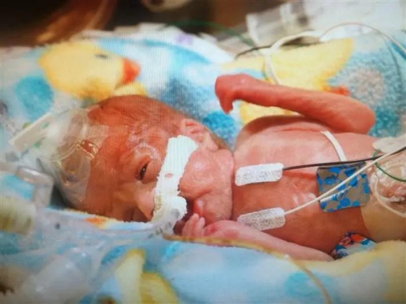 bebe-prematuro-milagro-1