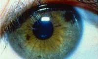 Iris Diagnostic