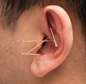 Ear Acupuncture - Auricular Therapy