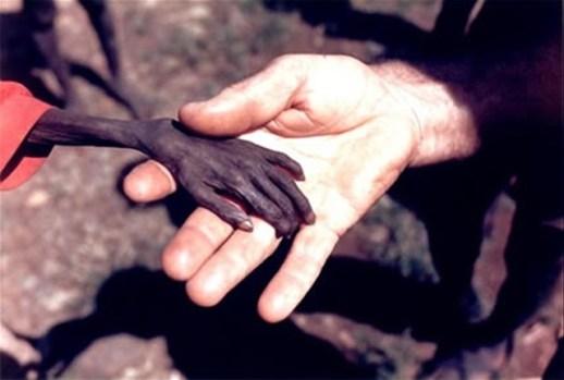 Hambre en Uganda