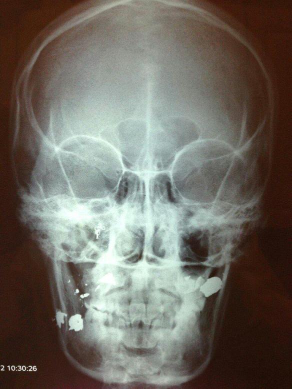 .45ACP Hydroshock X-ray