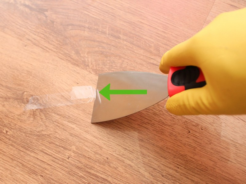 Large Of How To Remove Adhesive From Skin
