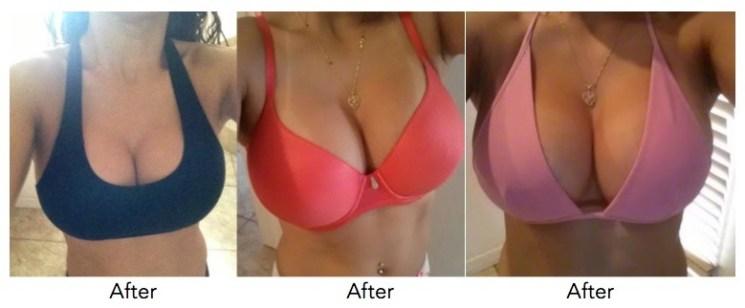 breast-enlargement-pills-creams-silverton-silverlakes-sunnyside-witswomenclinics-co-za