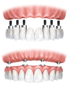 1.Implantatbrücke- 2.Implantatprothese