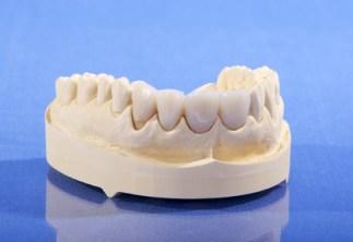 Zahnersatz im Oberkiefer - Vollkeramikkrone