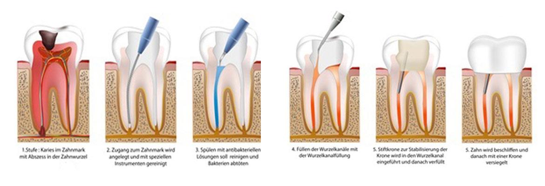 Wurzelbehandlung am Zahn