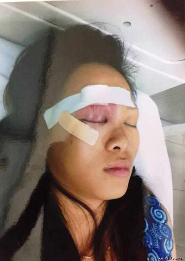 Chị Phan Thị Ngọc Tuyết bị thương sau vụ truy sát (ảnh người dân cung cấp)