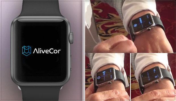 Apple-Watch-ECG-le-bracelet-électrocardiogramme-pour-Apple-Watch
