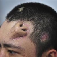 Chinese doctor builds new nose on man's forehead
