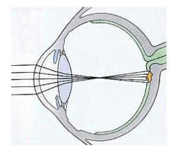 lens-elongated