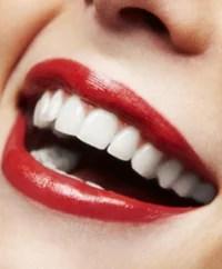 kosmetische zahnaufhellung, lächeln, weiße zähne, bleaching