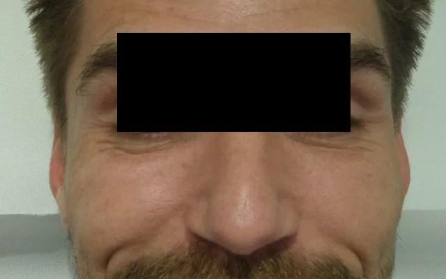 Botox Falten Krähenfüße Augenfalten Vorher-Nachher-Bild