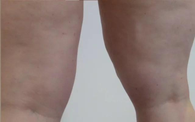 Cellulitis reduzieren Kryosauna Eissauna Vorher-Nachher-Bild
