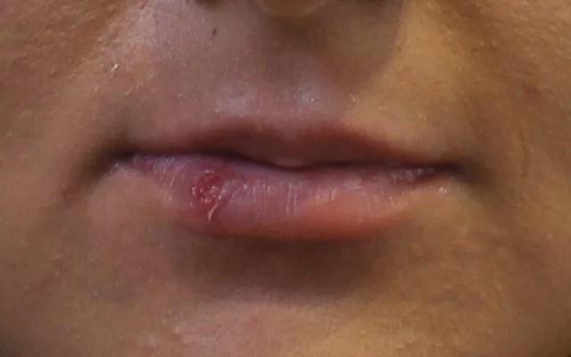Lippen aufspritzen Vorher-Nachher-Bild