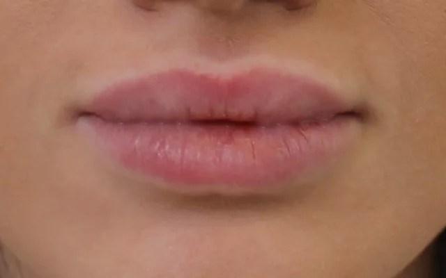 Lippen vergrößern Hannover Vorher-Nachher-Bild