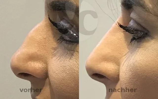 Filler Nase Hyaluronsäure aufspritzen Vorher-Nachher-Bild