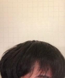 furufuru_scalp26