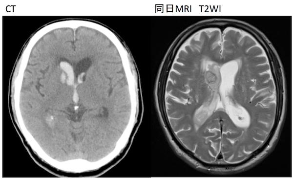 cerebral hemorrhage acute MRI