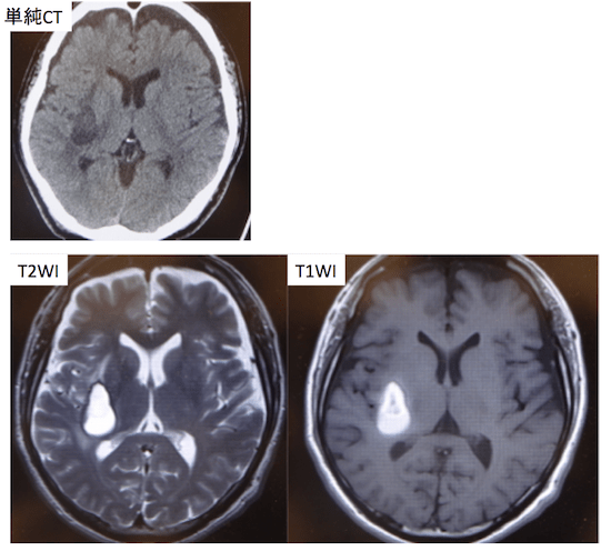 chronic cerebral hemorrhage