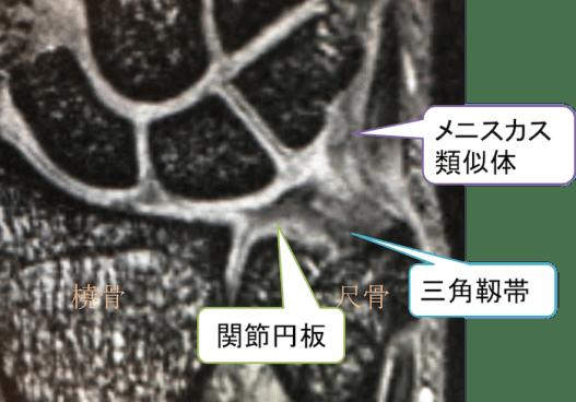 TFCC anatomy of mri1