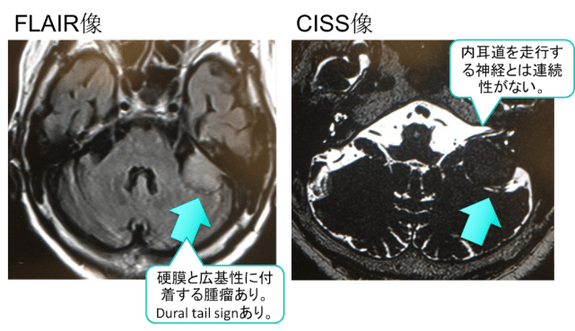 meningioma mri findings
