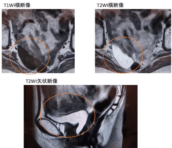 peritoneal inclusion cyst