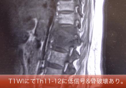 pyogenic spondylitis