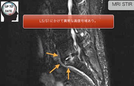pyogenic spondylitis2