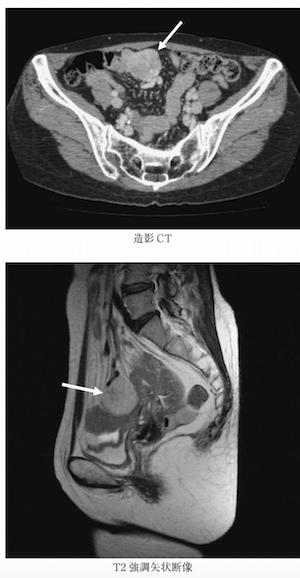 small bowel GIST
