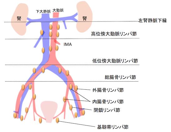 uterine corpus cancerlymphonode