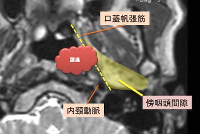 epipharyngeal carcinoma6
