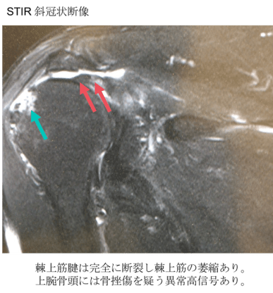complete rotator cuff tear mri findings