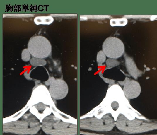 pericardial recess CT findings