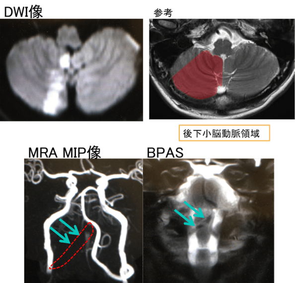 va-dissection-mri-findings