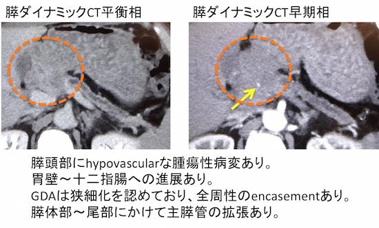 panceratic headcancer
