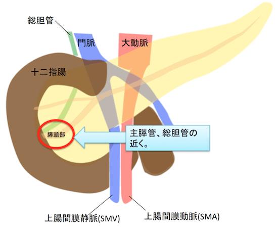 pancreatichead