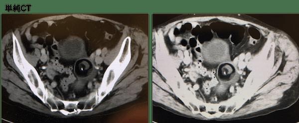 dermoid-cyst-ct-findings