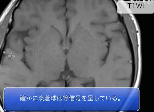 hepatic encephalopathy1