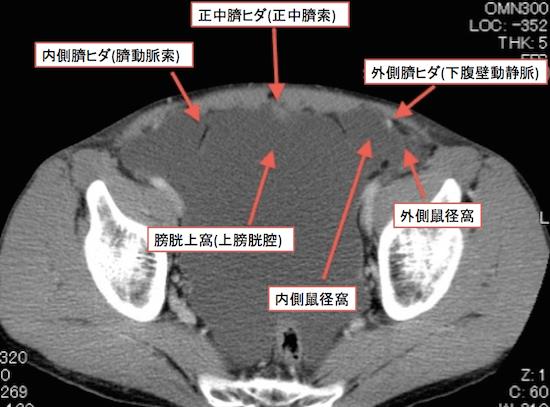 peritonea