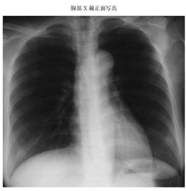 takayasu disease