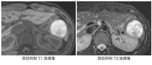 solid-pseudopapillary-neoplasm